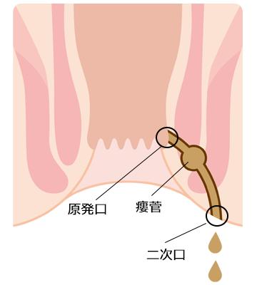 尻 穴 痛み